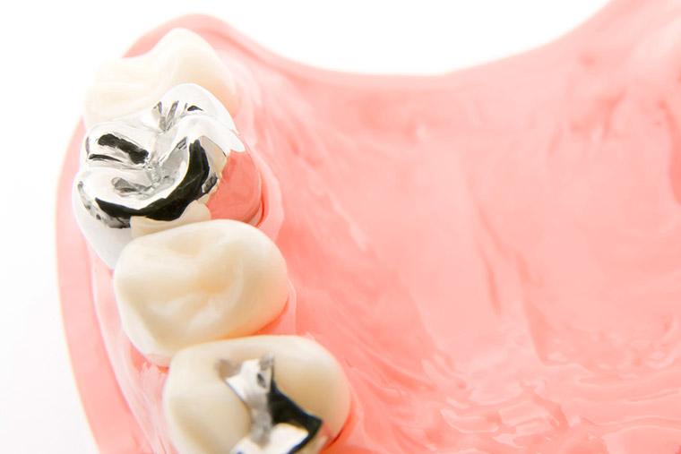 銀歯が気になる・前歯をきれいにしたい方へ